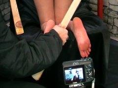 علامات: حب الأرجل, حب الأرجل, فتشية.