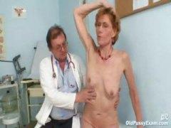 Žymės: putka, pas ginekologą, subrendusios, iš arti.